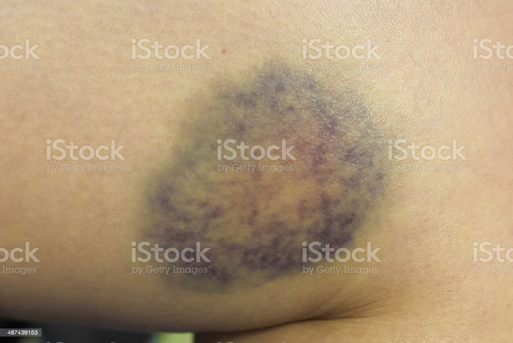 Closeup on a Bruise on wounded woman leg skin stock photo