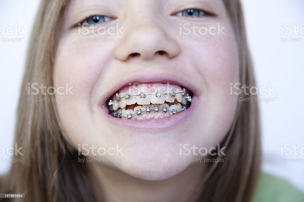 Closeup on little girl's face showing her braces,  horizontal. stock photo
