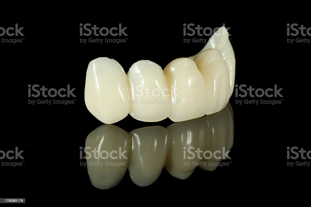 Close-up photo of a partial dental bridge with five teeth stock photo