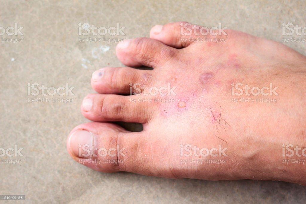 closeup skin athlete?€™s foot psoriasis fungus stock photo