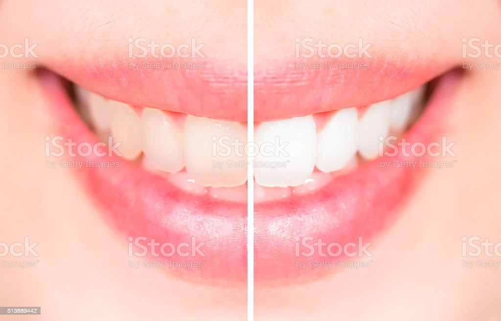 Close-up teeth female between before and after brush the teeth, stock photo