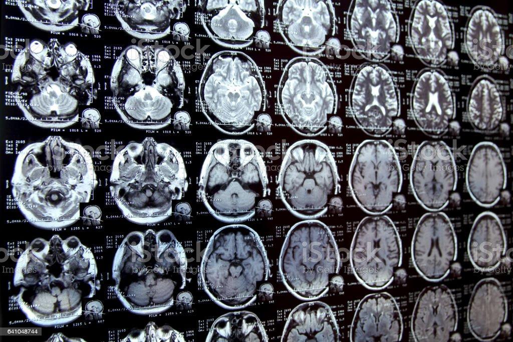 Closeup view of a MRI head scan stock photo
