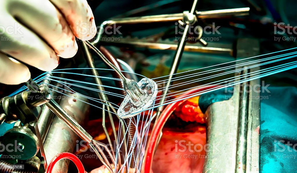 Close-up view on mitral ring durring inplantation stock photo