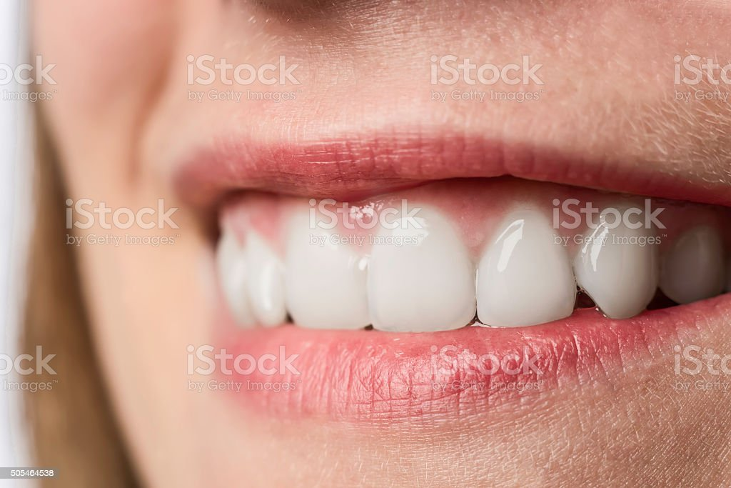 Closeup white teeth of young woman stock photo