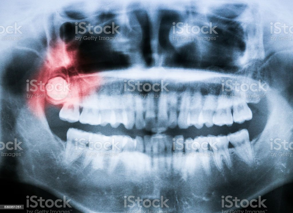 Closeup x-ray of impacted wisdom tooth stock photo