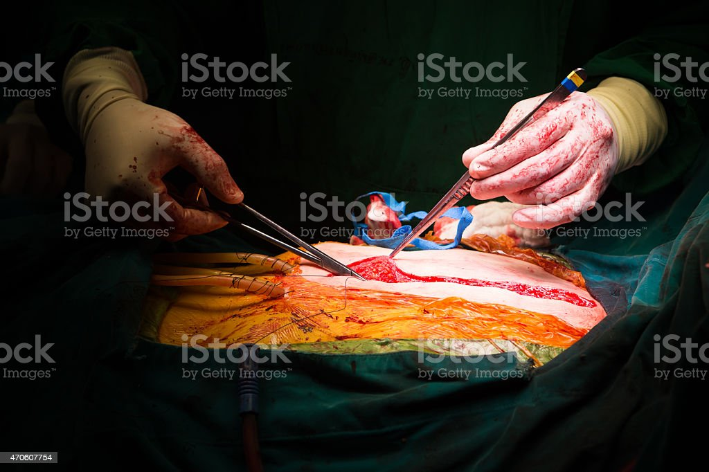 closure sternum bone with metal wires stock photo