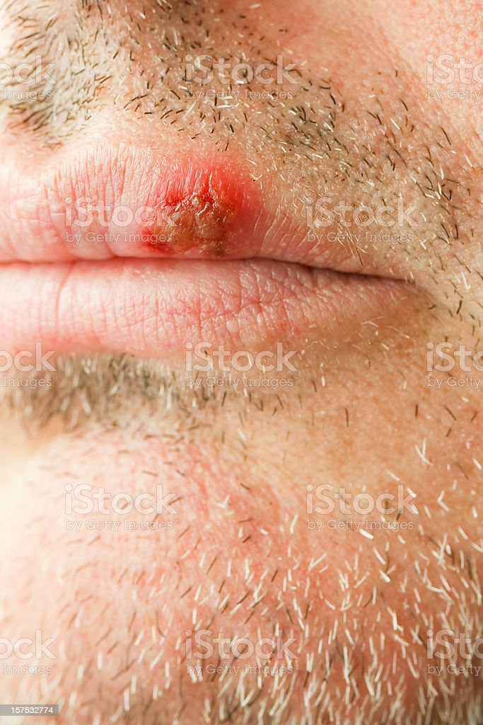 cold sore on the lip of a middle aged male. stock photo