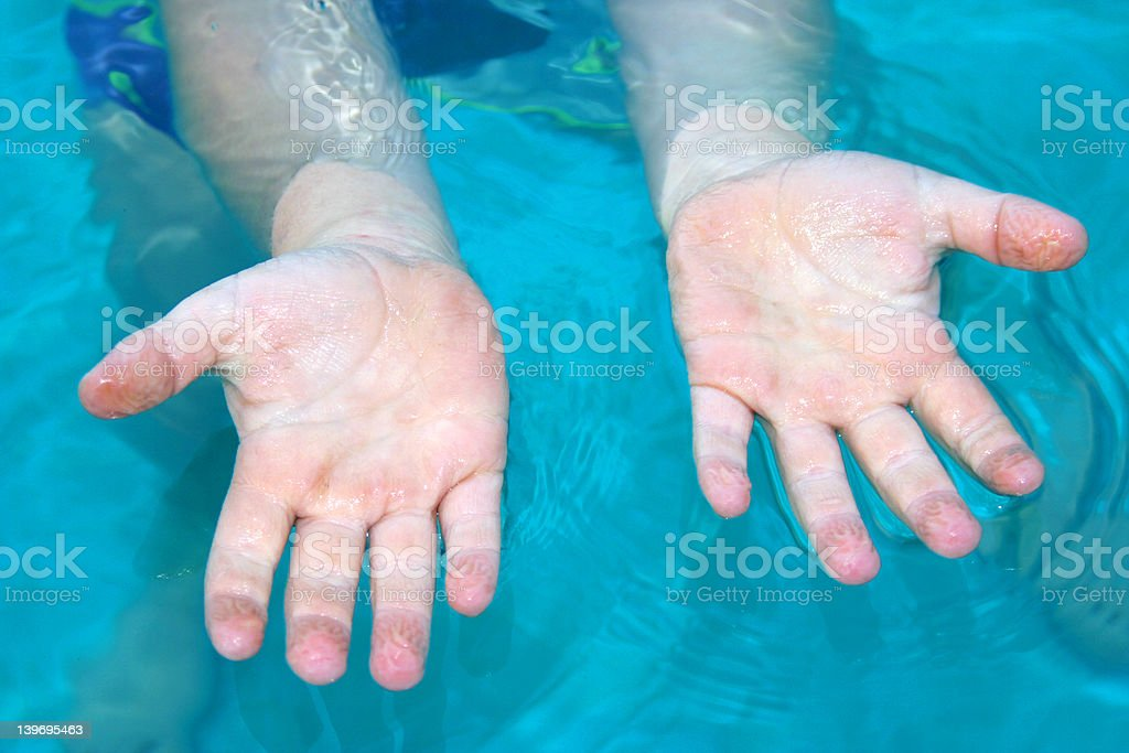 Cold Wrinkled Hands stock photo