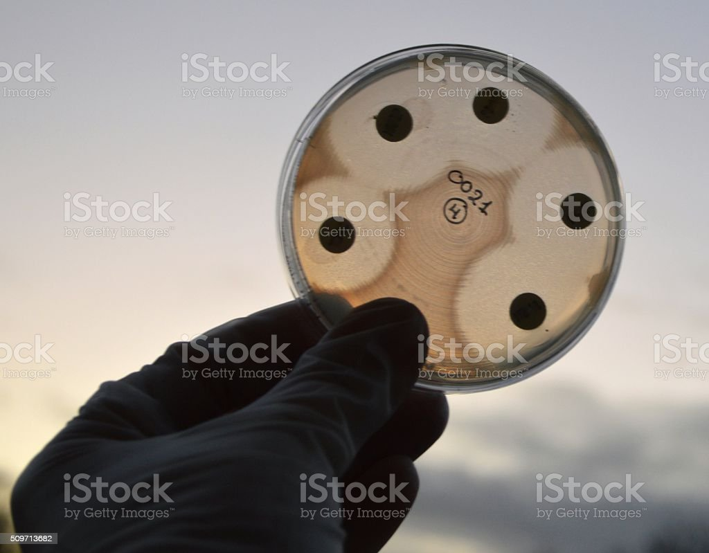 E. coli stock photo