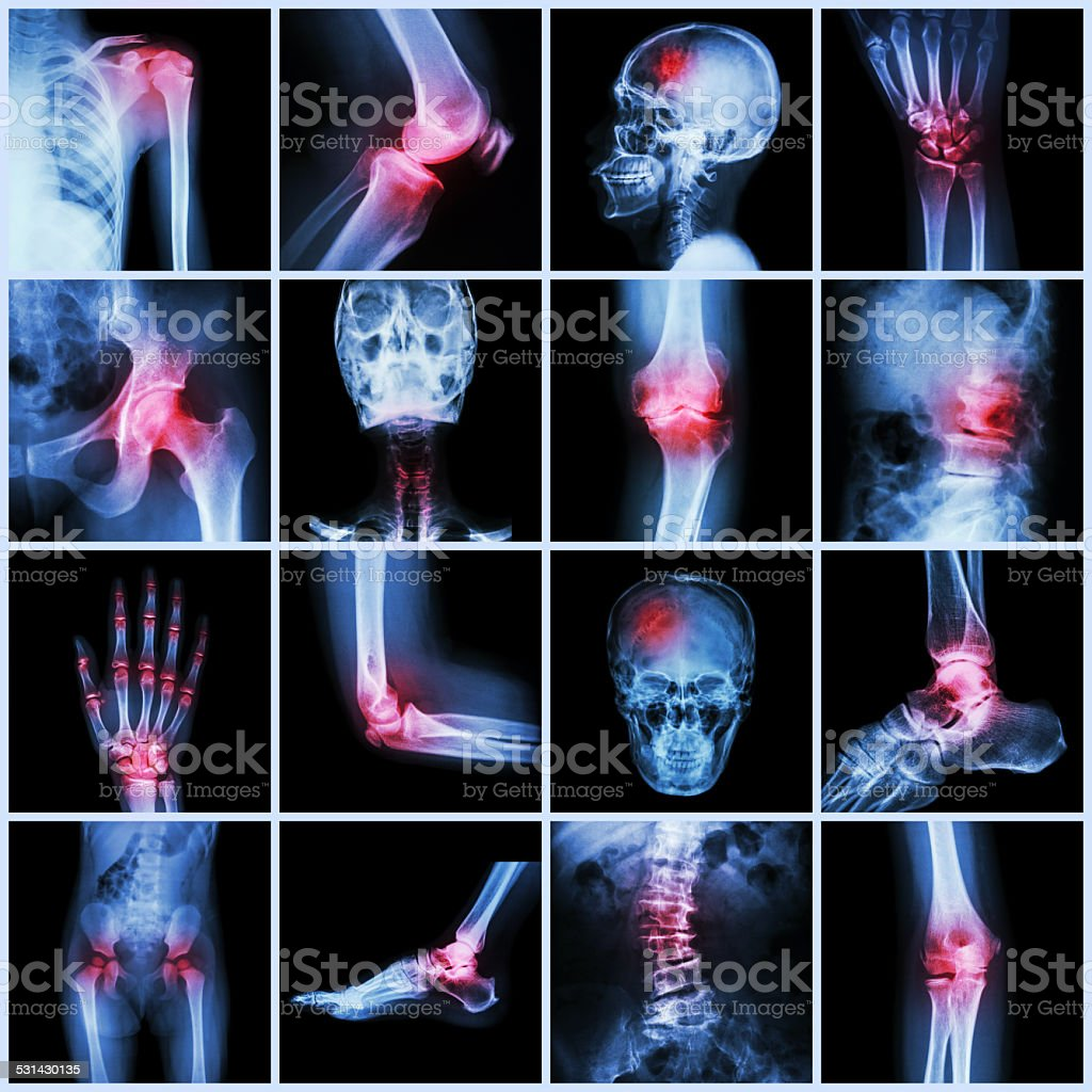 Collection human joint and arthritis and stroke stock photo