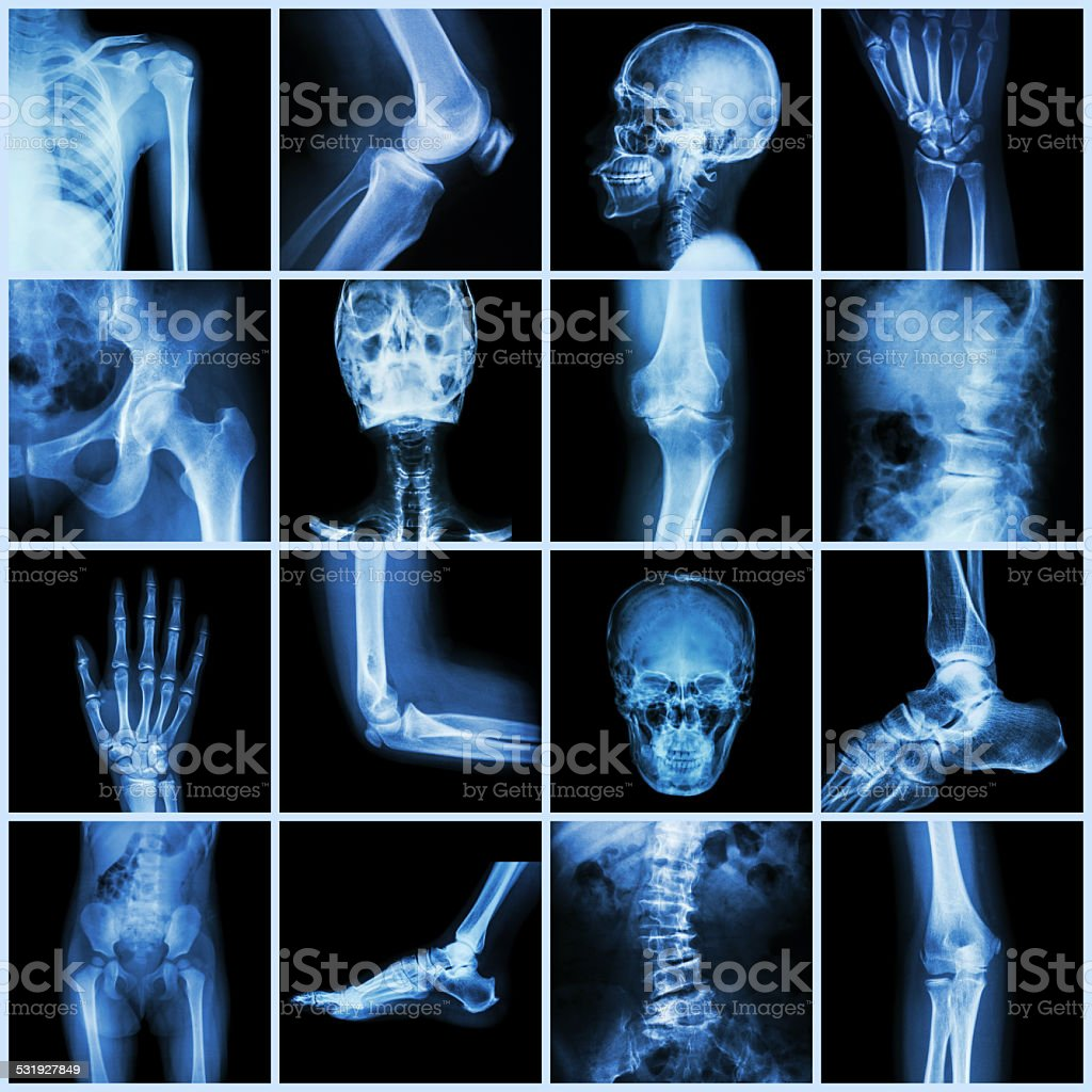 Collection human joint stock photo