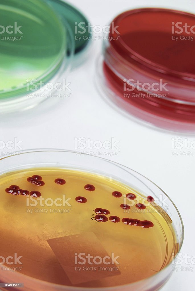 Collection of bacterial cultures featuring Serratia marcescens royalty-free stock photo