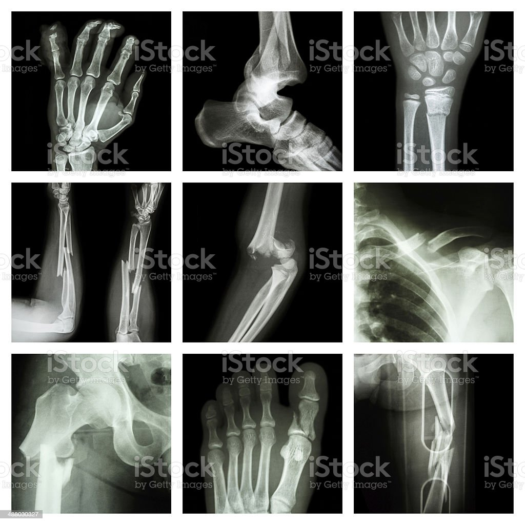 Collection of bone fracture stock photo