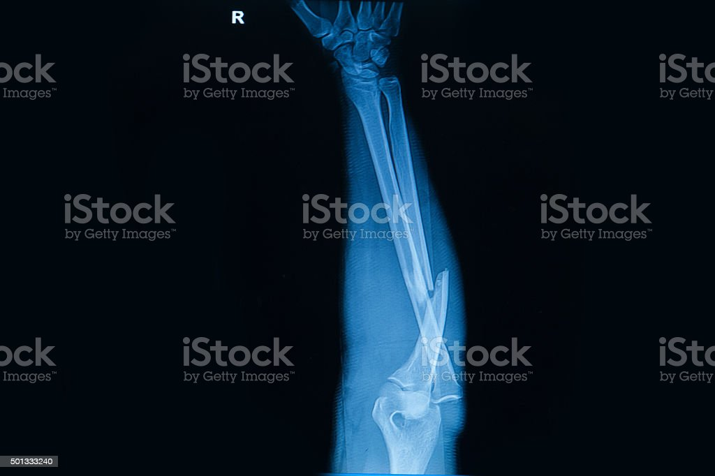 Collection of human x-rays  showing fracture  of  radius  bone stock photo