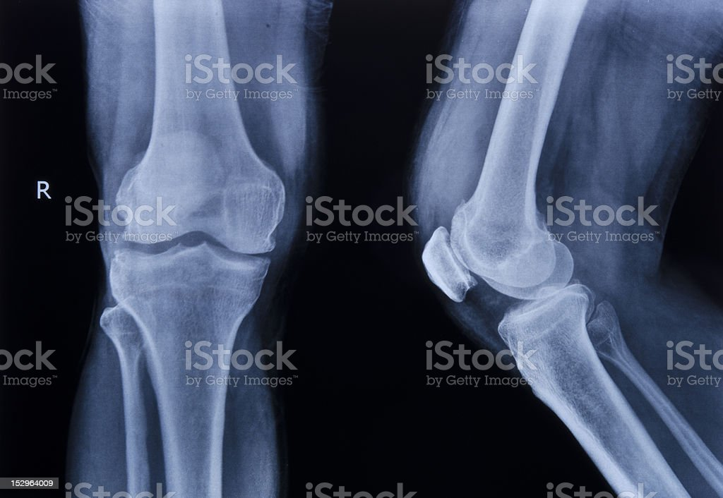 collection of x-ray normal knee stock photo