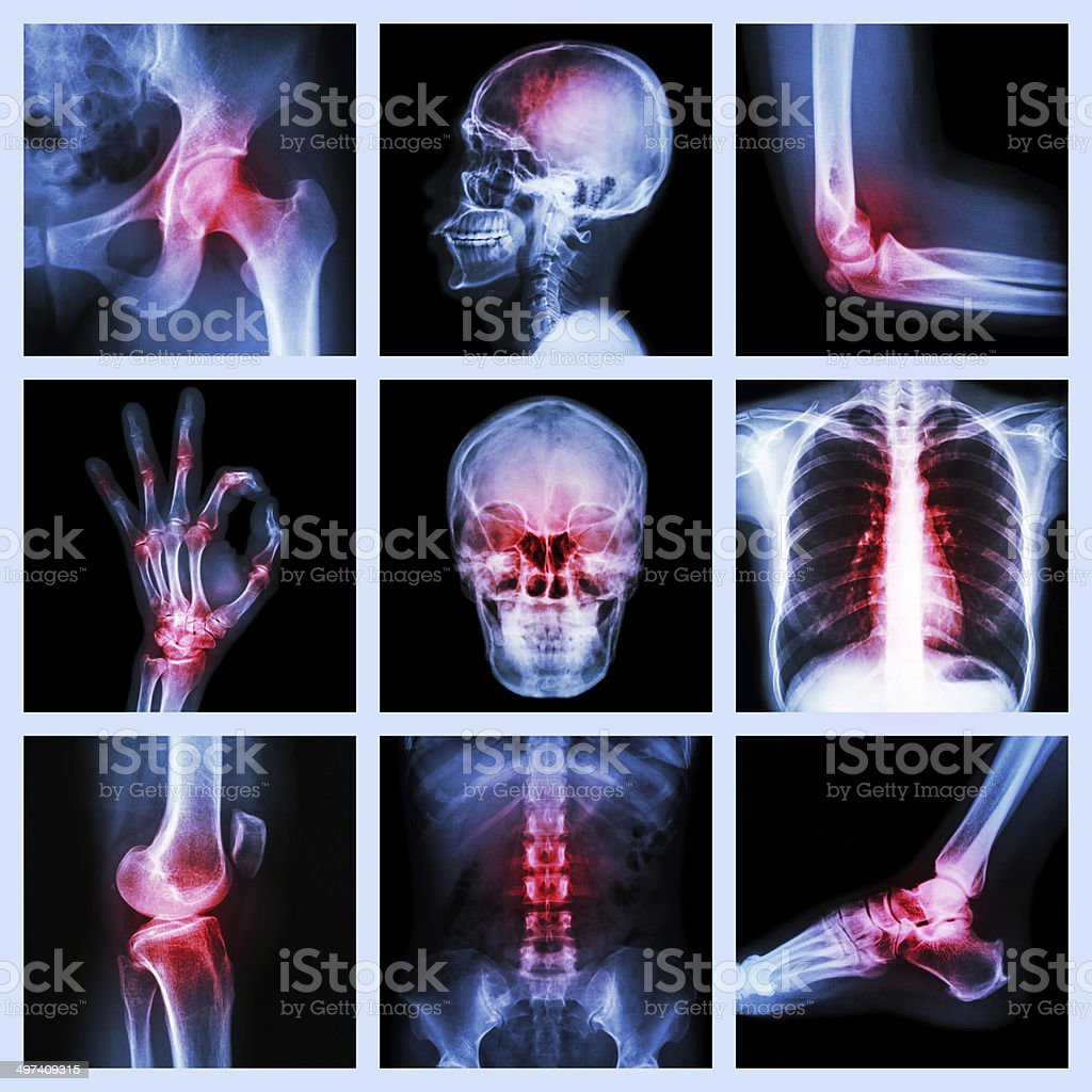 Collection X-ray and multiple injury stock photo