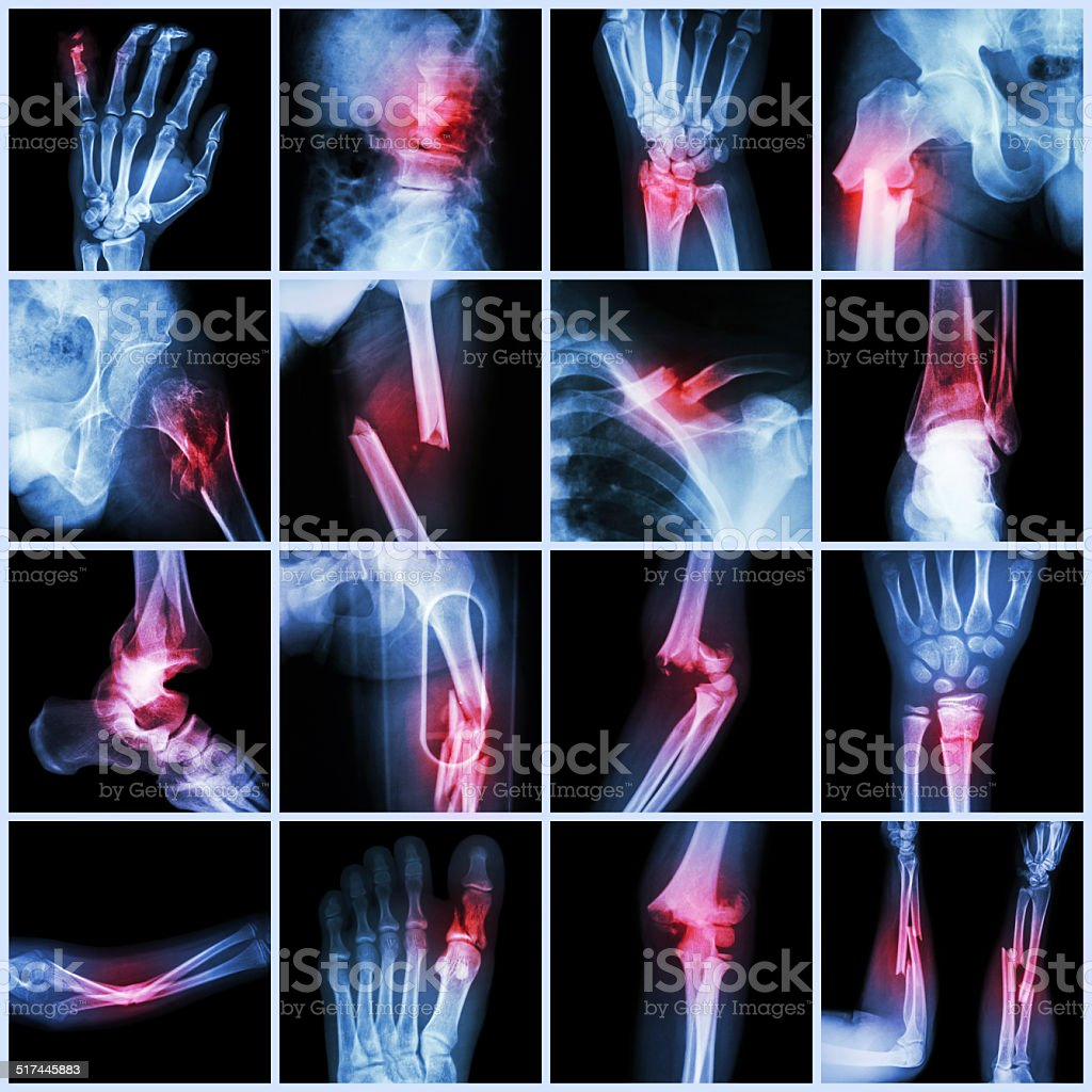 Collection X-ray multiple bone fracture stock photo