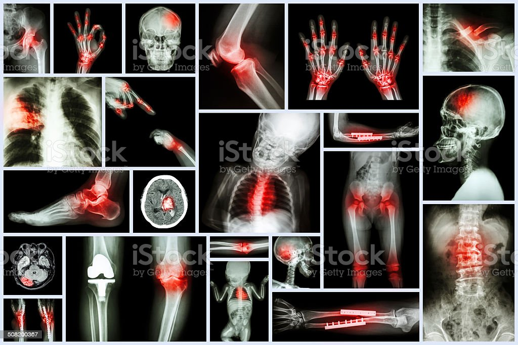 Collection X-ray multiple human's organ stock photo