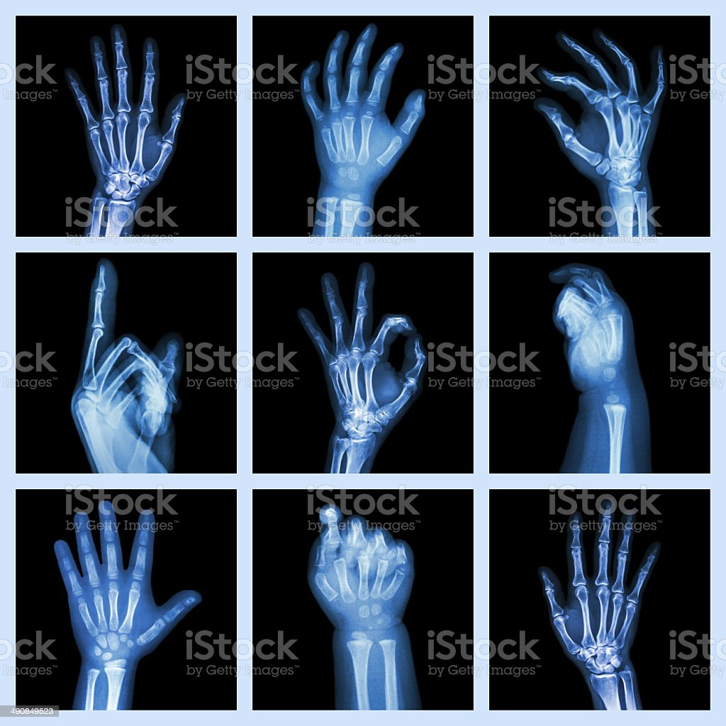 Collection x-ray of hands stock photo