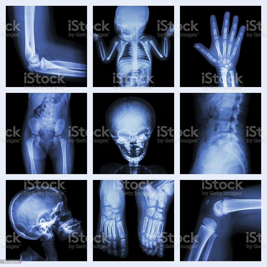 Collection X-ray part of child stock photo
