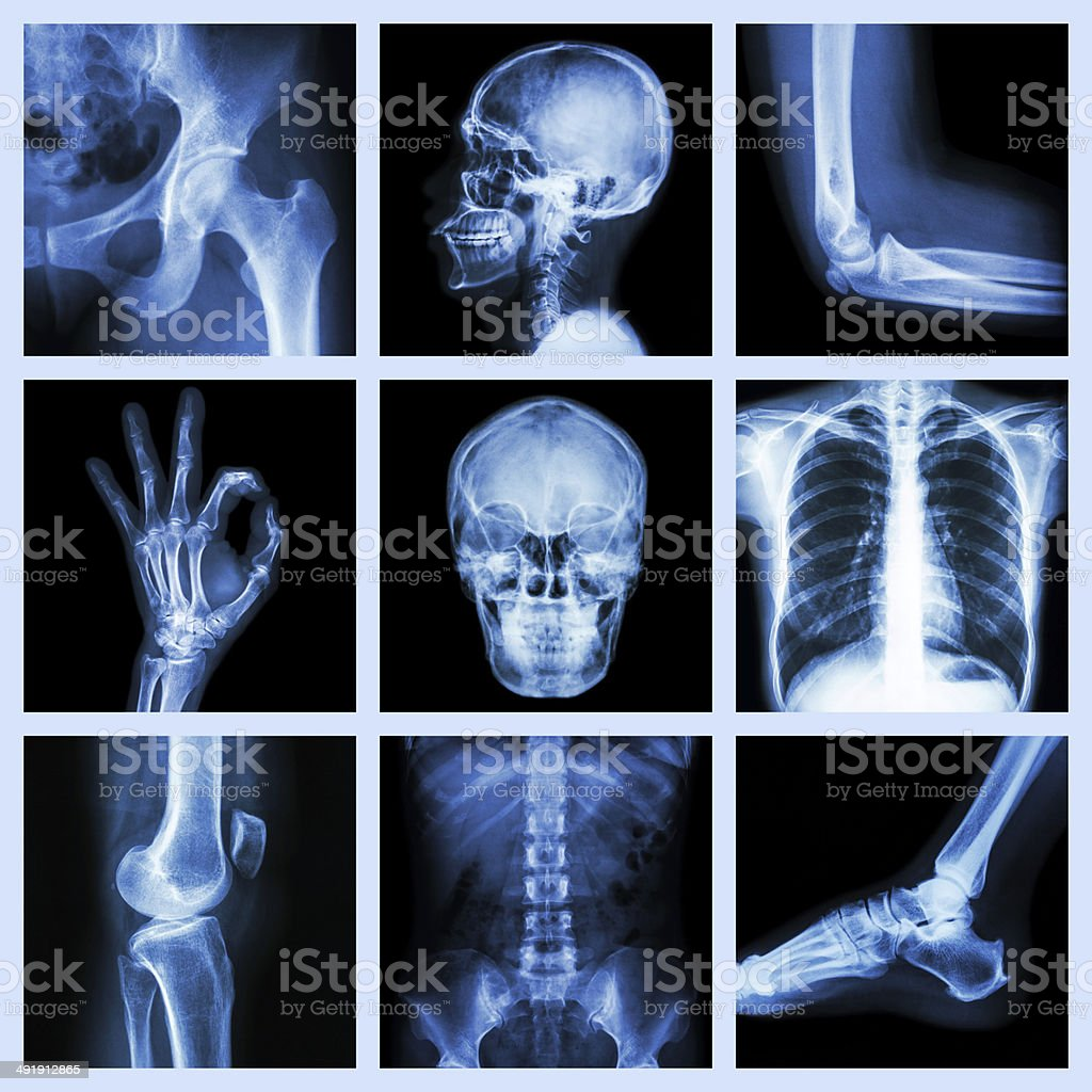 Collection X-ray part of human stock photo