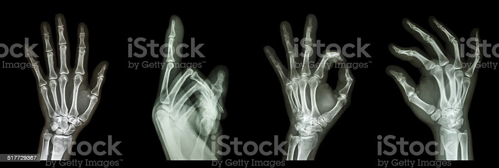 Collection X-ray symbol hands stock photo