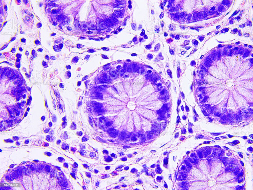 Colon cancer microscopic photograph stock photo