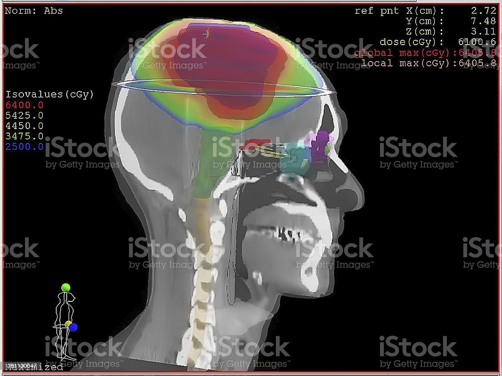 Colorful Xray Mapping Computer Diagram stock photo