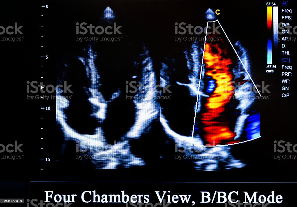 Colourful ultrasound monitor image. Four Chambers View stock photo