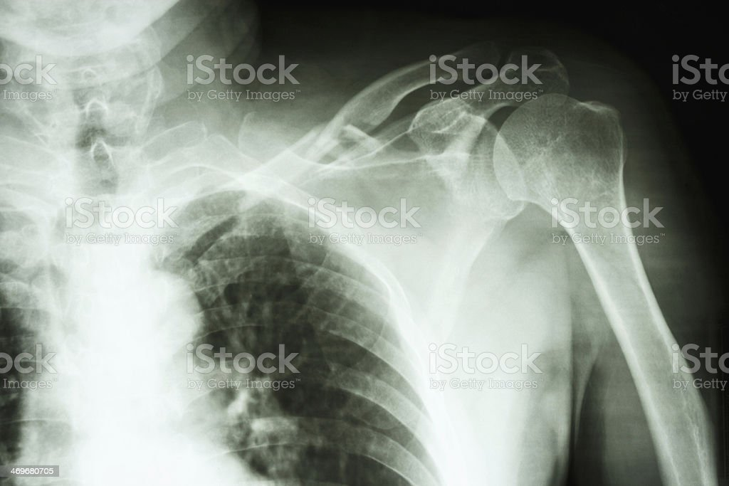 comminuted fracture middle one third left clavile stock photo