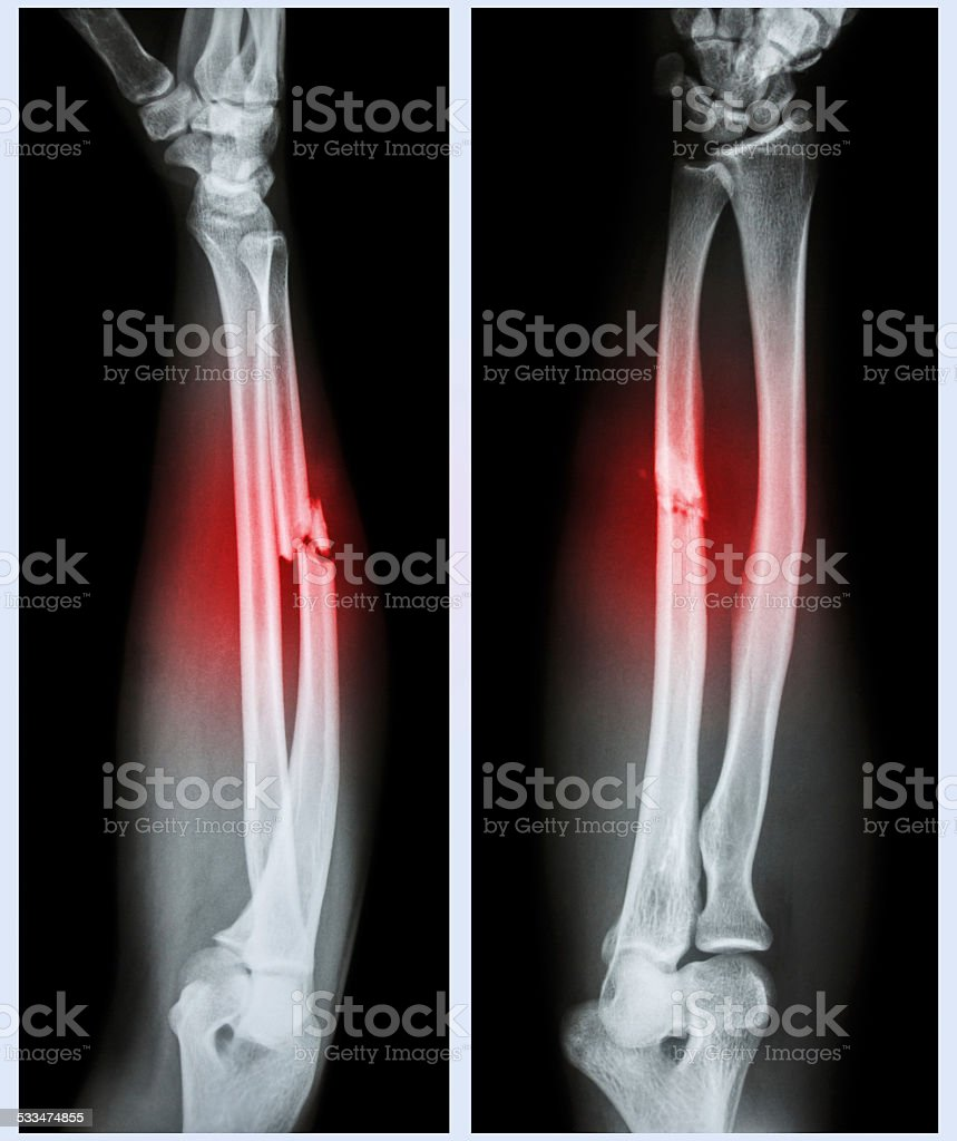 Comminuted fracture shaft of ulnar bone stock photo