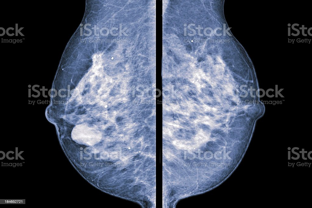 comparative mammogram stock photo