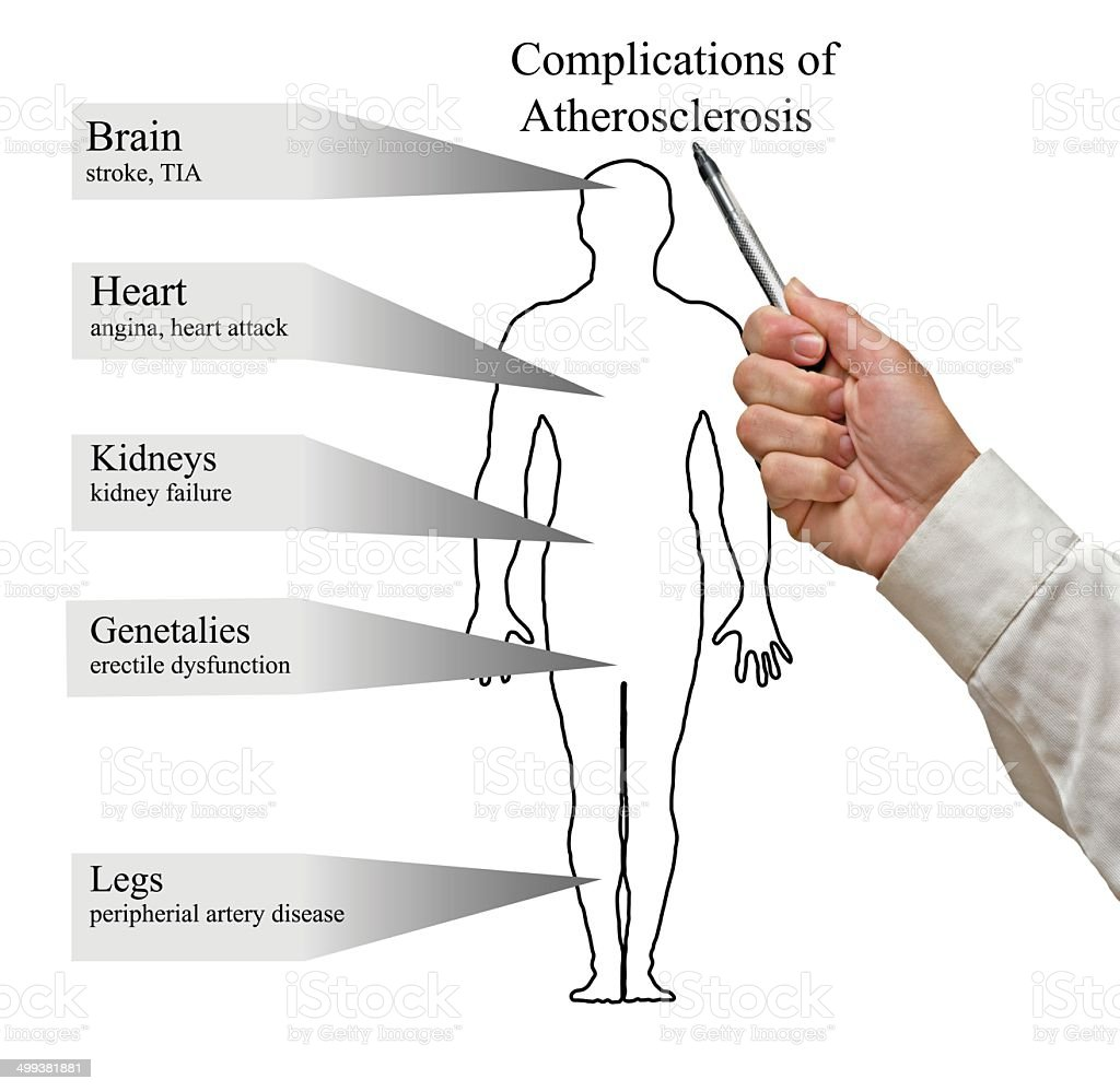 Complications of Atherosclerosis stock photo