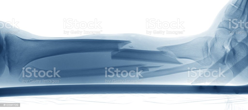 Computed radiography(CR) of broken leg with wooden plate and screws stock photo
