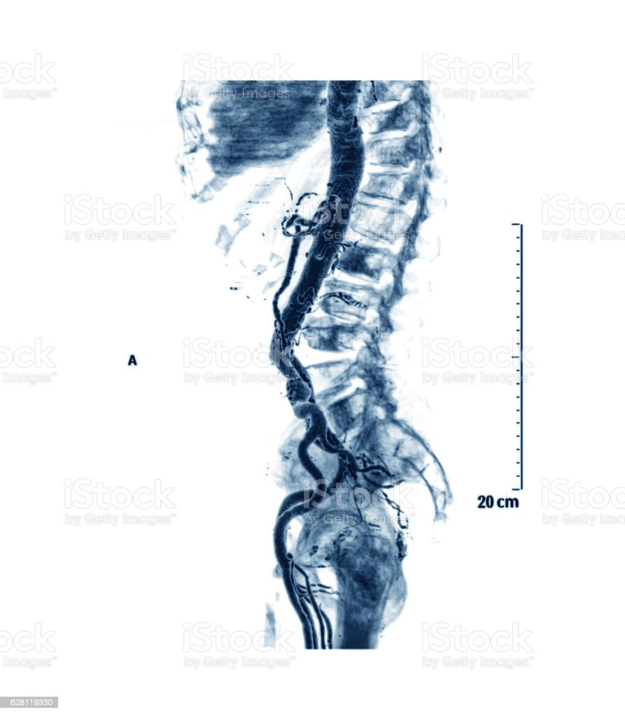 Computed radiography tomography (CTA) of abdominal aorta stock photo