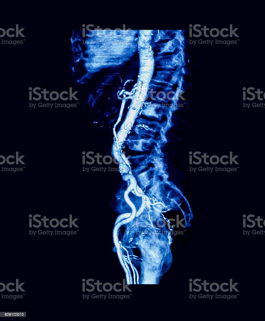 Computed tomography angiography (CTA) of abdominal aorta stock photo