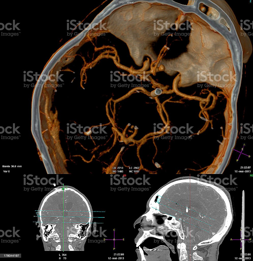3D computed tomography angiography of the brain stock photo