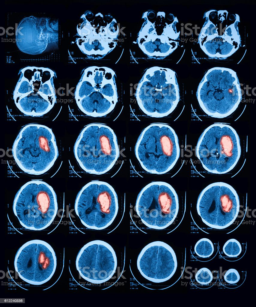 Computed Tomography(CT) of brain stock photo