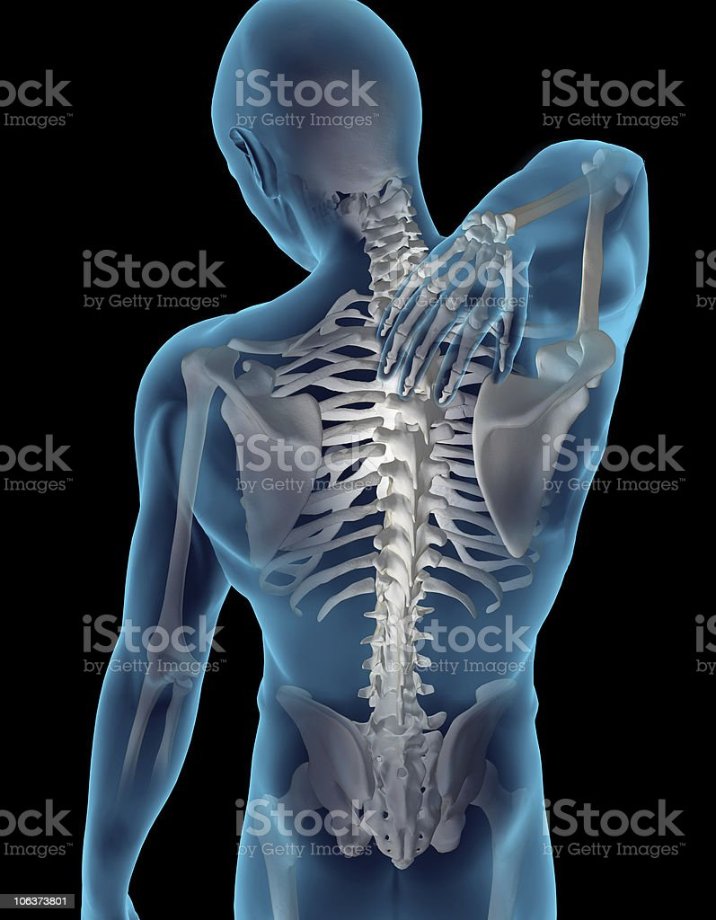 Computer generated image of a patient with upper back pain stock photo