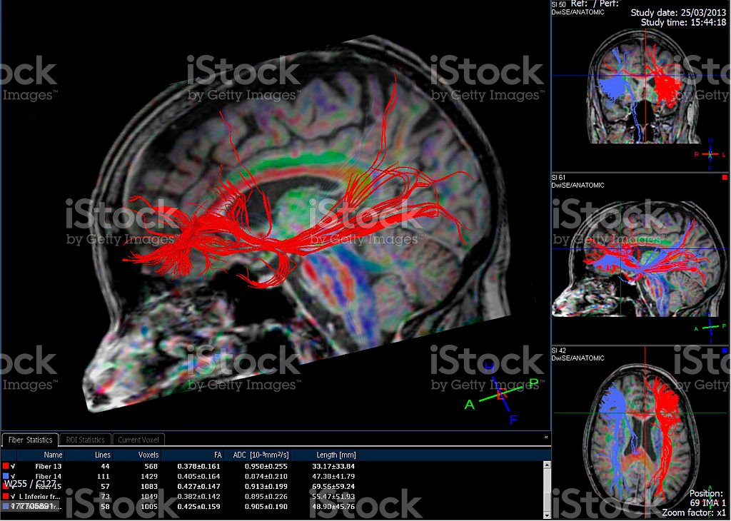 Computer-generated image of tractography of brain stock photo