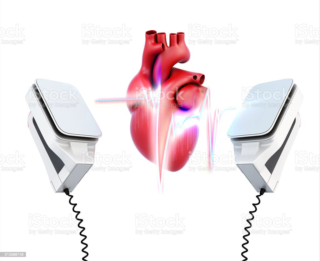 Conceptual image of the model heart and the discharge stock photo