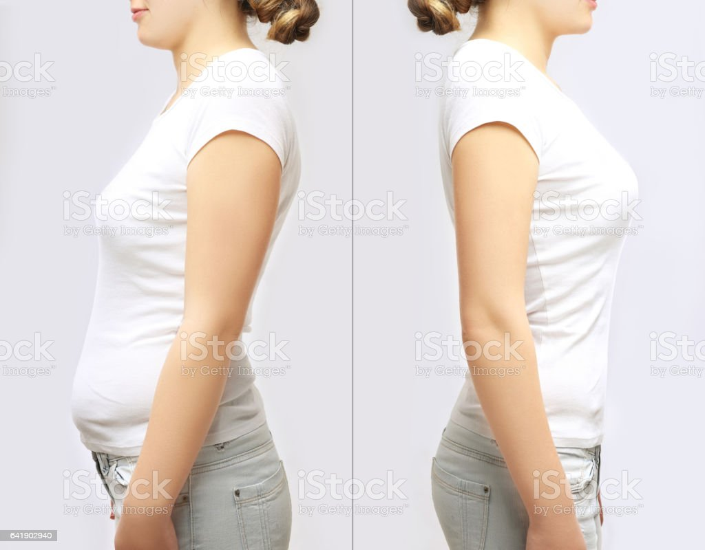 Concept-weight loss Two young girls standing in front of each other wearing the same type of clothes.Fat girl standing next to a skinny girl stock photo