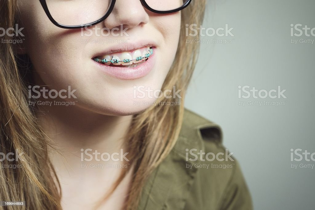 Confident Teenage Female with Teeth Braces royalty-free stock photo