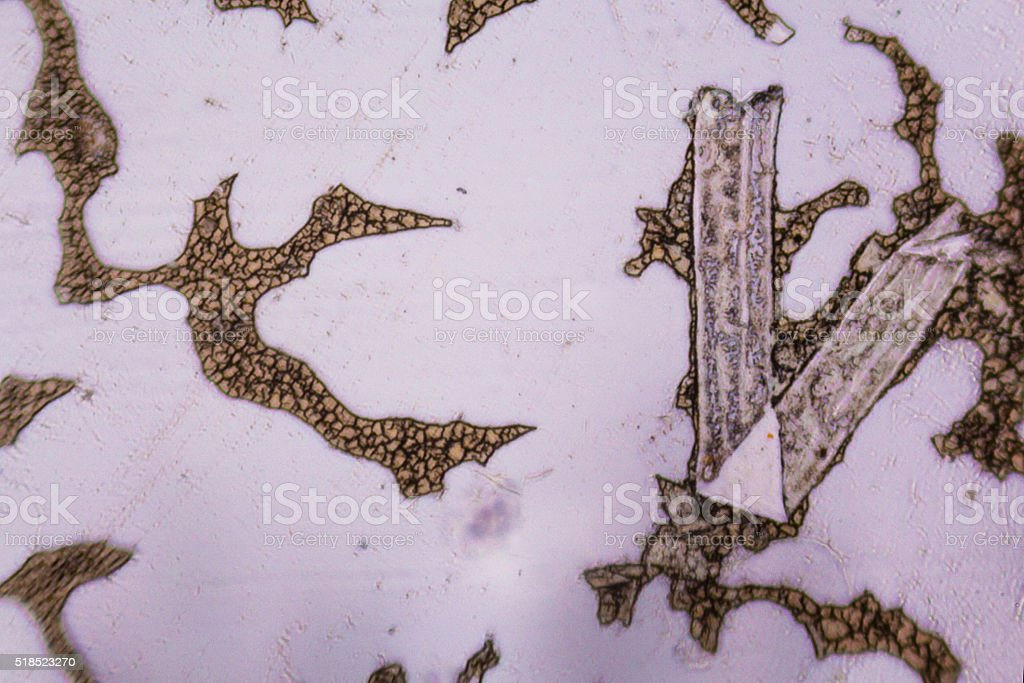 Congealed blood cells under the microscope stock photo