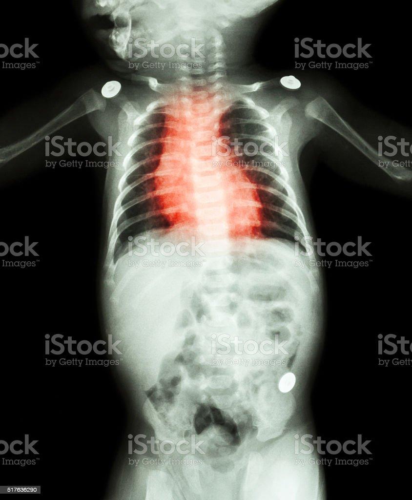 Congenital Heart Disease , Rheumatic Heart Disease stock photo