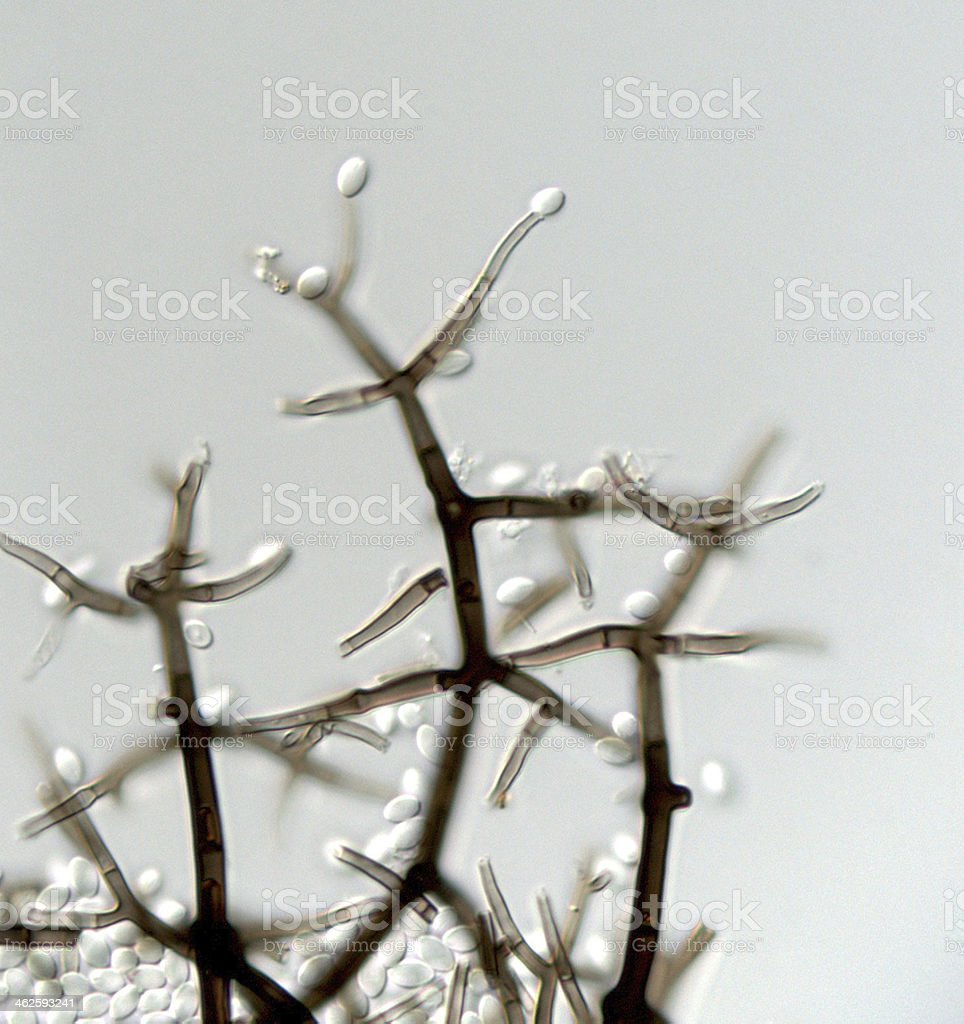 Conidiophores of an unknown fungus stock photo