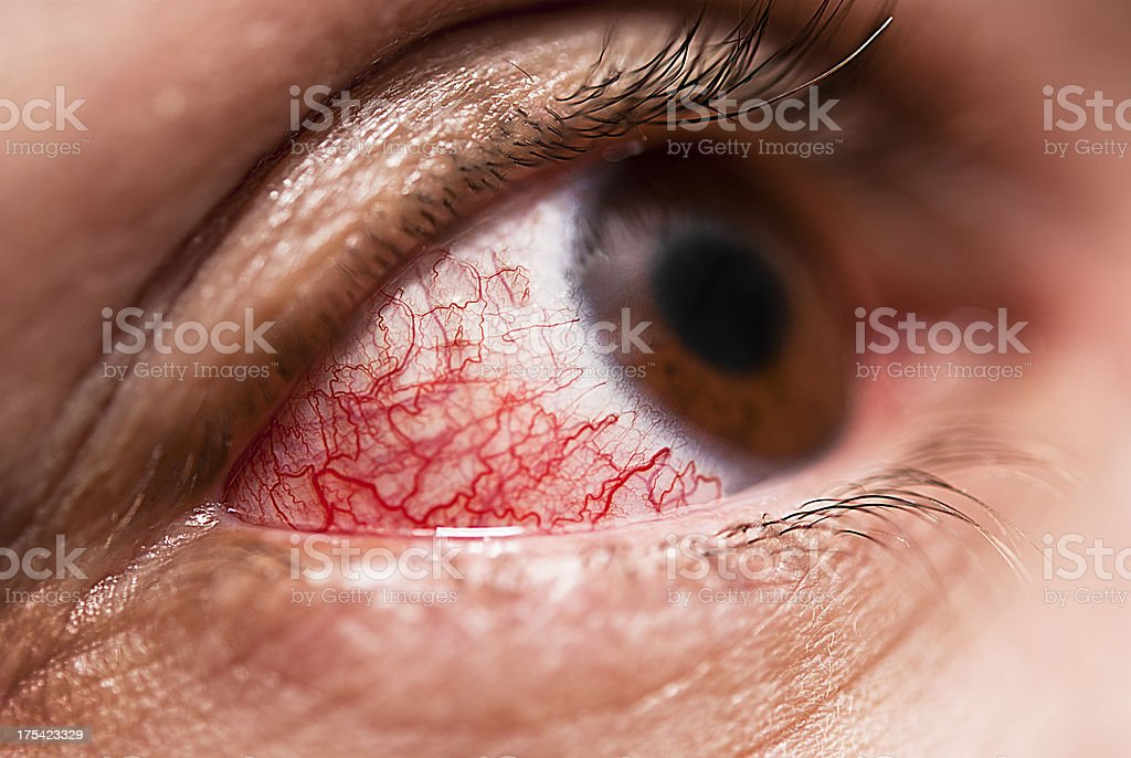 Conjunctivitis stock photo