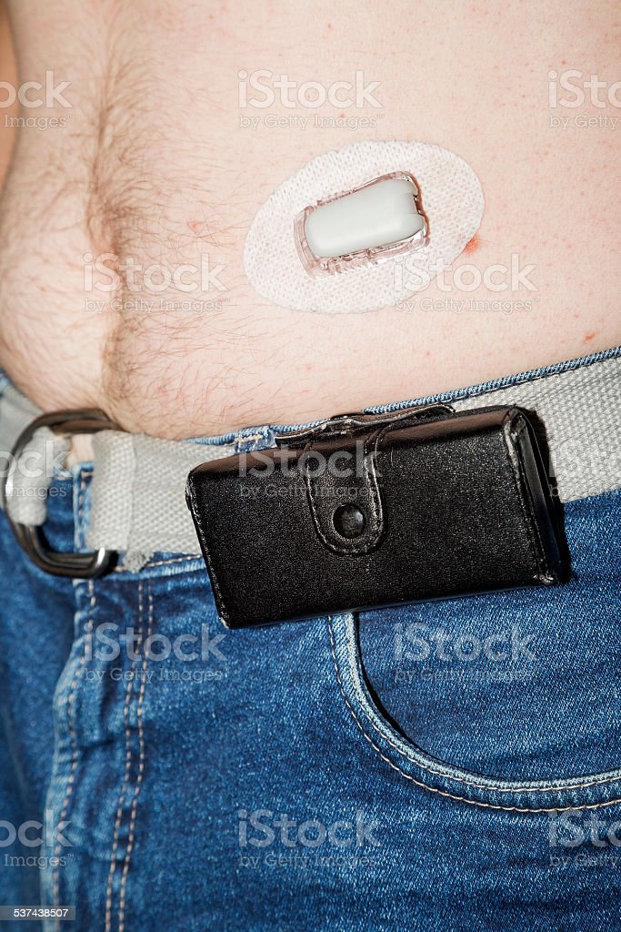 Continuous glucose monitoring with a sensor stock photo