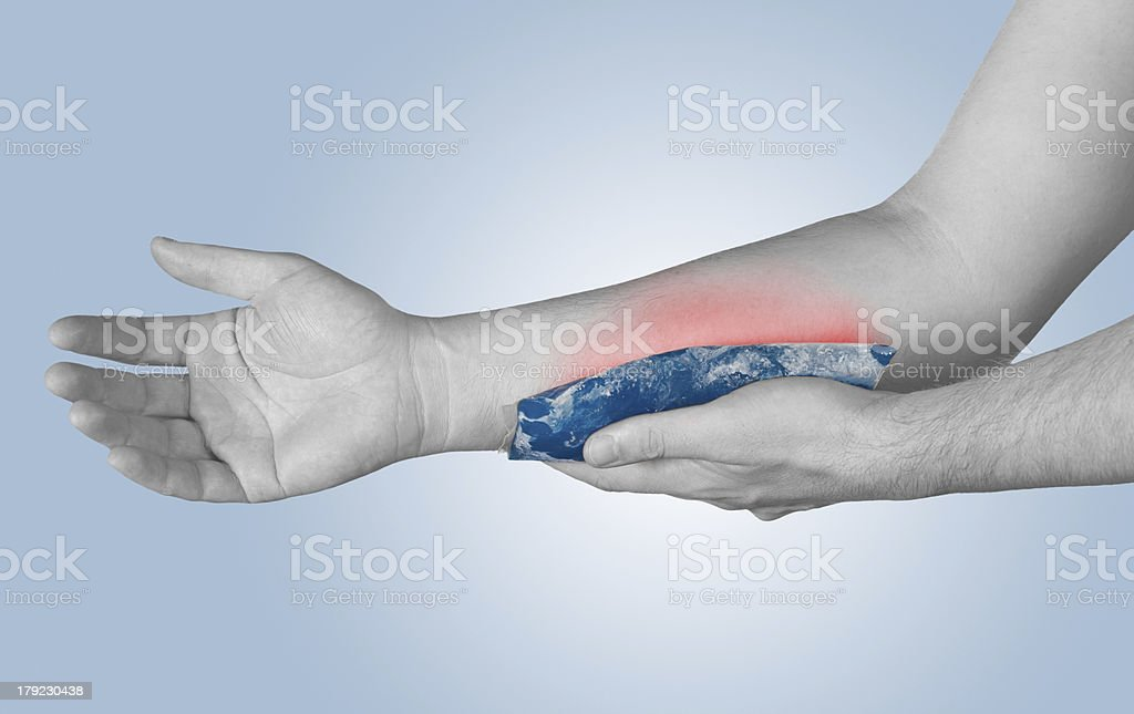 Cool gel pack on a swollen hurting arm stock photo