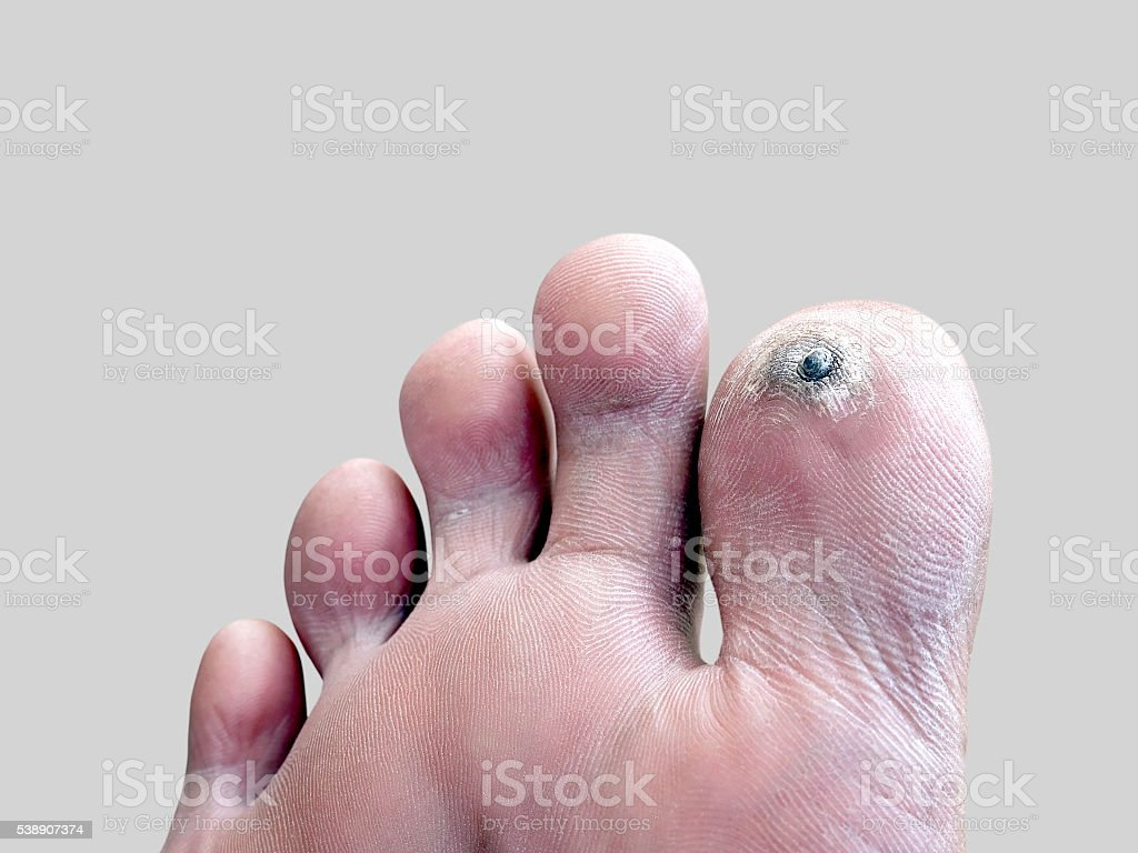 corn on toe, dermatology that is caused by pressure stock photo